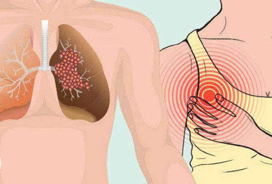 Bu 6 simptomu gordukde, mutleq hekime muraciet edin. Onkoloqlardan XEBERDARLİQ!